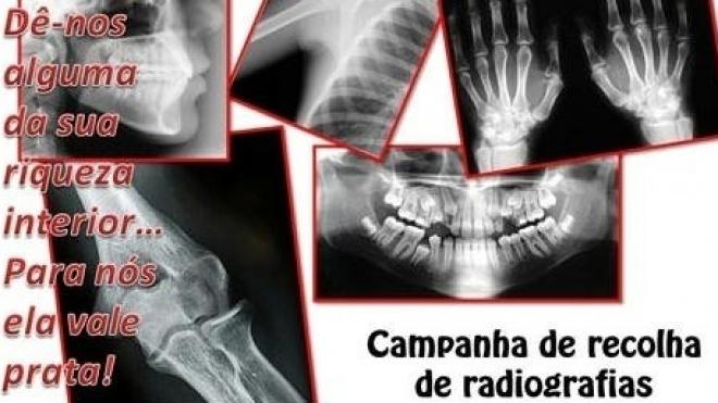 Castro Verde com 21ª campanha de reciclagem de radiografias