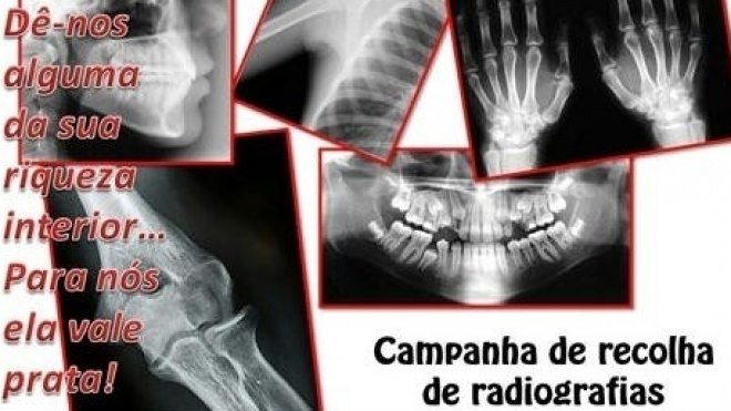 AMI promove Campanha de Recolha de Radiografias